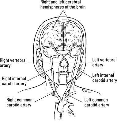 ���� - Acidente vascular cerebral, também conhecido como um & # 147-Brain Ataque & # 148-