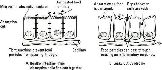 junções apertadas em células aren't always as tight as they should be. [Credit: Illustration by K
